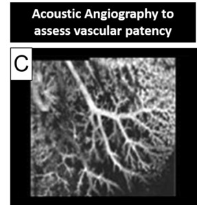 acoustic angiography to assess vascular patency