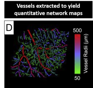 vessels extracted to yield quantitative network maps