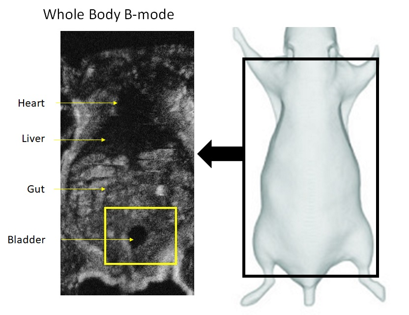whole body 3D ultrasound labeled