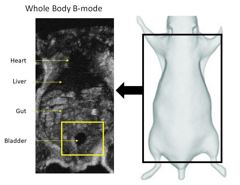 whole body 3D ultrasound labeled